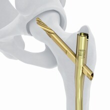 TFN-ADVANCED Proximal Femoral Nail System
