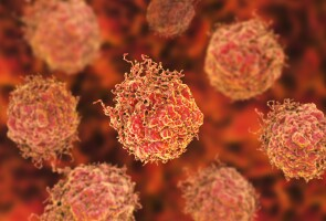 A Close-Up View of Prostate Cancer Cells