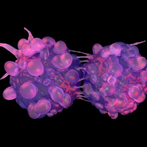 Bladder cancer cells dividing