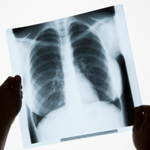 Person holding an image of a chest x-ray
