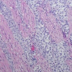 A microscopic view of urothelial carcinoma