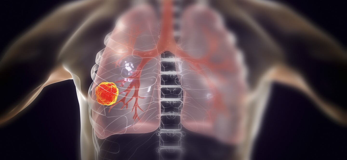 5c200263041 Lung Cancer: The Risk Factors Even Nonsmokers Must Know | Johnson & Johnson