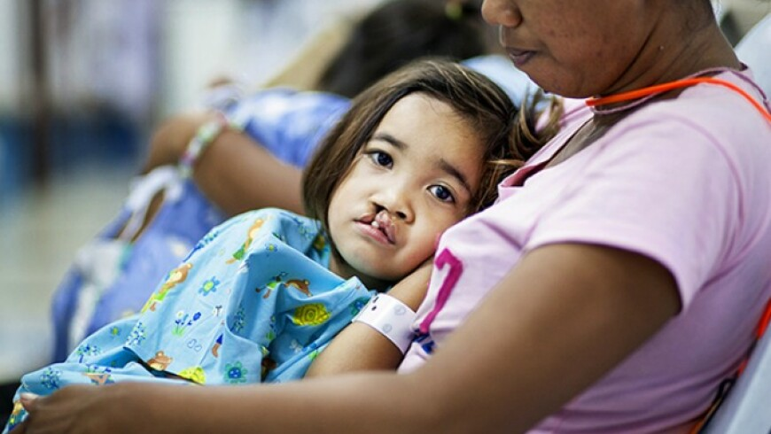 operation smile surgery