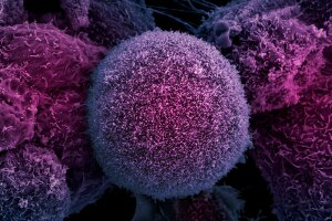 A detail of a prostate cancer cell