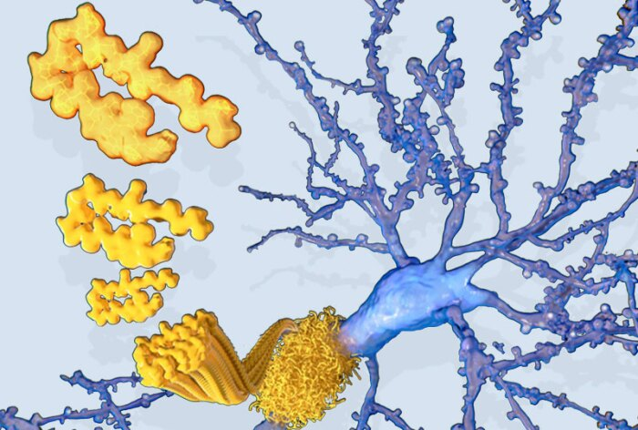 Beta amyloid protein plaques in the brain of an Alzheimer's patient