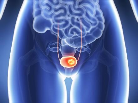 Bladder cancer graphic