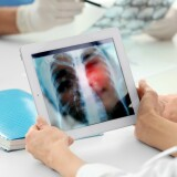 Doctors looking at a lung scan on a tablet