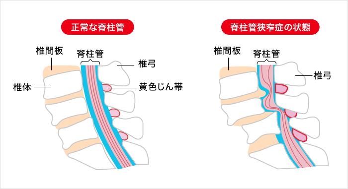 脊柱管狭窄症|やさしい医療講座|一般の方|ジョンソン・エンド・ジョンソン株式会社メディカルカンパニー | ジョンソン・エンド・ジョンソン