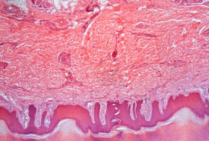 An image of the skin barrier