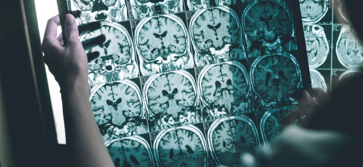 A photo of a person holding an MRI scan of a brain