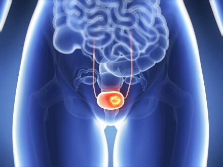 Bladder cancer graphic