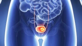 A graphic of a close-up view of bladder cancer