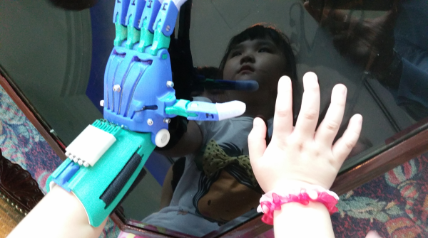 A photo of Kai Lei showing her 3-D printed left hand and natural right hand